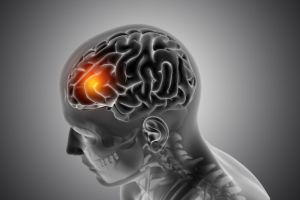 male-medical-figure-with-front-brain-highlighting-brain-tumor